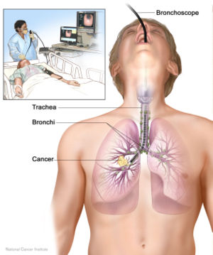 picture-of-bronchoscopy